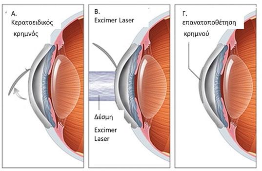 299a97c46b Με τη μέθοδο LASIK η διόρθωση της διαθλαστικής ανωμαλίας δε γίνεται στην  επιφάνεια αλλά στο εσωτερικό του κερατοειδούς. Αρχικά
