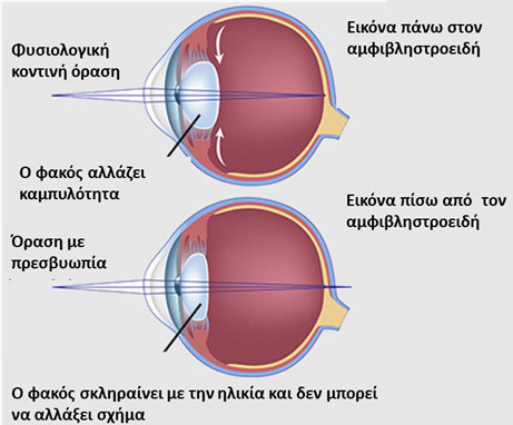6771450176 Βασικό σύμπτωμα είναι η μειωμένη όραση για κοντά. Το άτομο δυσκολεύεται να  διαβάσει και κουράζεται μετά από σύντομο διάστημα κοντινής εργασίας.